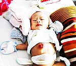 An infant suffering many diseases needs help