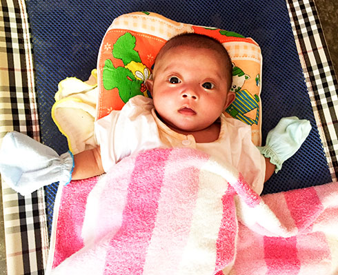 An infant needs urgent help to save her eyes