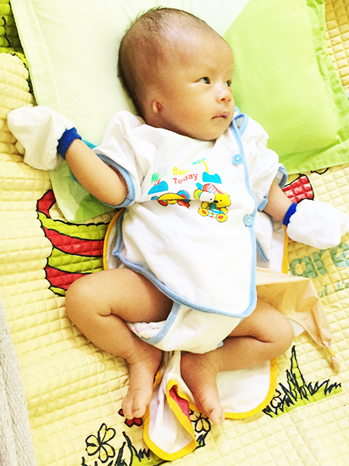 Le Hong Vu, newborn with many serious birth defects.