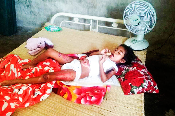 Eight-year-old girl badly burned